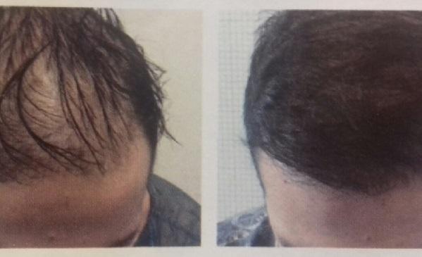 LM Hair System – Prati Fiscali